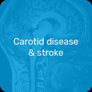 Carotid Disease & Stroke Icon