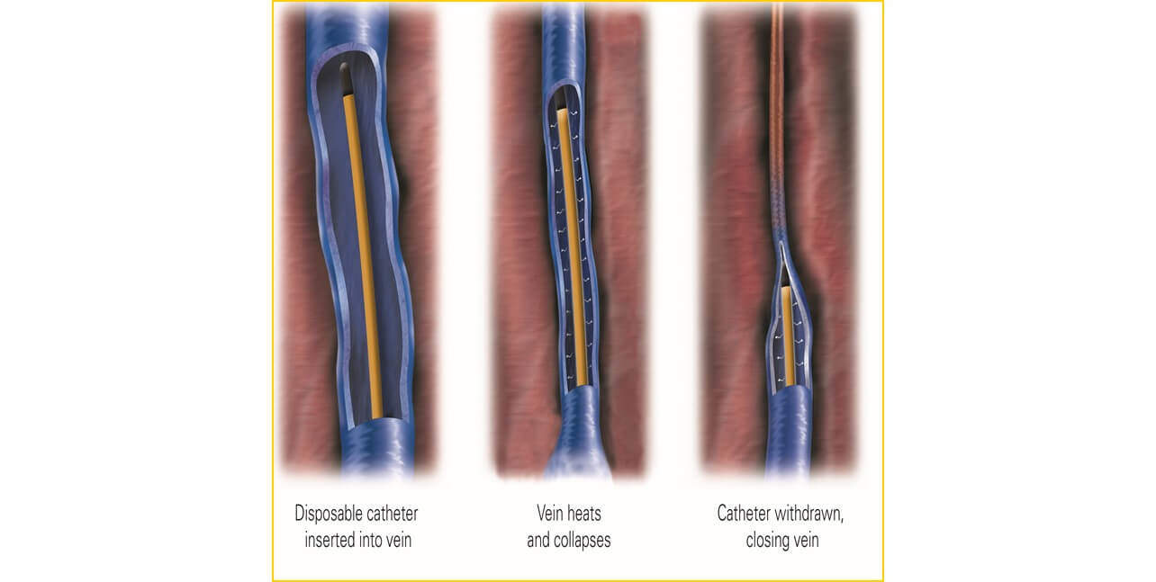 Diagram showing the process of closing a vein via thermal ablation.