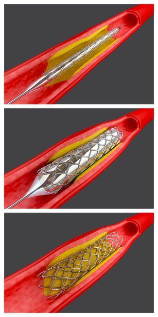 Diagram showing the sequence of stent placement in a vein